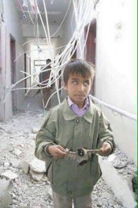 شاهد : صورة لأحد الأطفال المكفوفين الذين استهدفهم طيران العدوان السعودي الامريكي