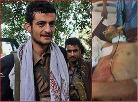 عاجل : بالصورة : مقتل المدعو حمزة المخلافي شقيق القيادي المرتزق حمود المخلافي وعدد من المرتزقة بتعز
