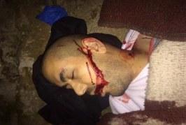 استشهاد شاب فلسطيني واعتقالات تطال 20 مواطنا في الضفة المحتلة